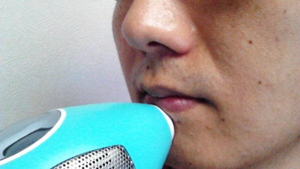 唇の下の部分にレーザーを当てる